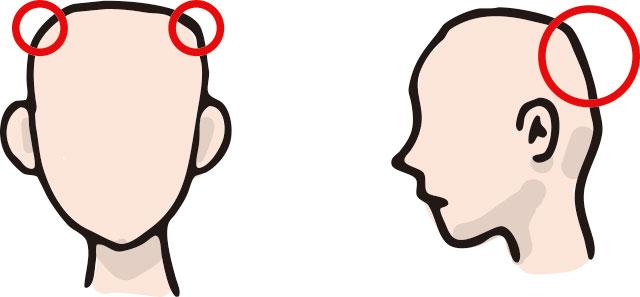 西洋人の頭の形と日本人(アジア人)の頭の形